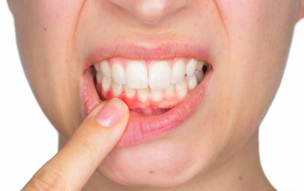 درمان مشکلات دهان