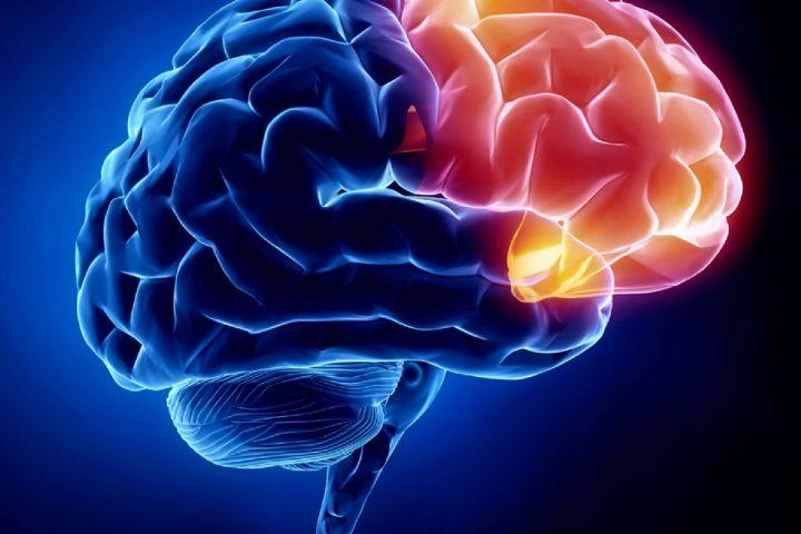متخصص طب سوزنی اصفهان مشکلات مغز و اعصاب